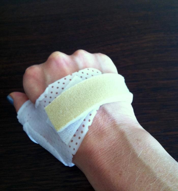 Splint - Thumb Deal